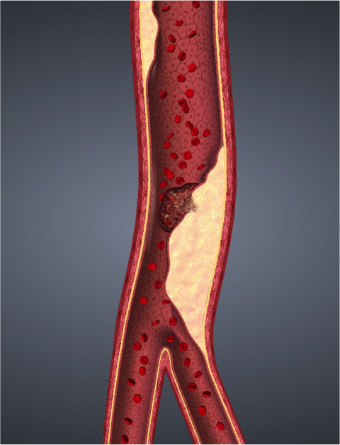 atherosclerosis.png
